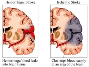 Obesity (Excessive Weight) A Predictor Of High Risk For Stroke