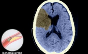 Better Recovery From Strokes Through Early CAT Scans