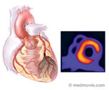 Heart Scan Saves Lives In Diabetics