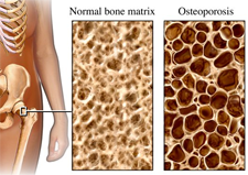 Osteoporosis In Males Is Common