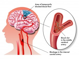 Stroke Risk Increases With Carotid Artery Disease
