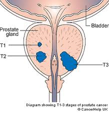 New Tumor Marker For Prostate Cancer Detected