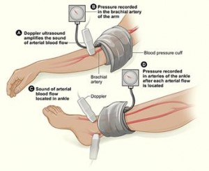 Ankle Blood Pressure Reveals Diabetic Problems
