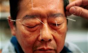Acupuncture For Headaches Found Effective