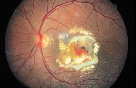 Age-Related Macular Degeneration Can Be Postponed