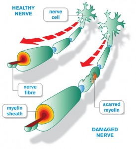 Epstein-Barr Virus Linked With MS