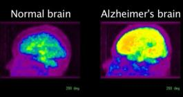 Alzheimers Now Detected Early