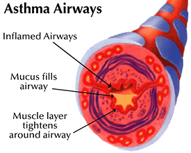 The-Shot-That-Treats-Asthma.png