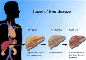 Liver Cirrhosis Threatens Overweight Children