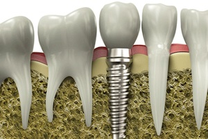 Tooth Implants For Better Health