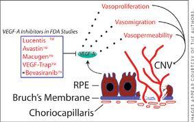 New Drug Reverses Macular Degeneration