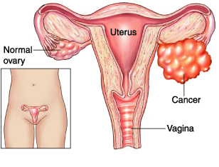 More Education Needed About Ovarian Cancer
