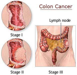 Hard Liquor And Beer Hike Colon Cancer Risk