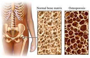 Lycopene For Bone Health