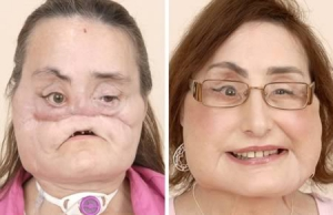 Face Transplants For Disfigured Patients