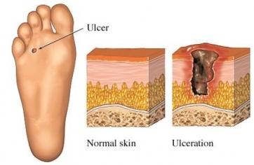 Prevent Foot Problems In Diabetics