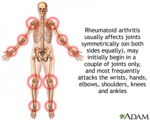 Benefits Of Arthritis Drug Outweigh Cancer Risk