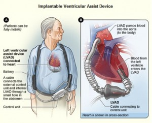 Mechanical Heart As Transplant Alternative
