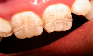 Dental Signs Indicators for Celiac Disease