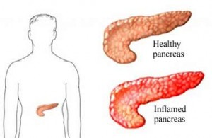 Pancreatitis Can Occur With Statin Use