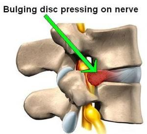 Disc Transplantation New For Herniated Disc