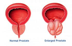 Hormone Dependency of Prostate Cancer