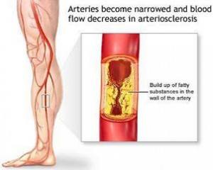 Disease Of Peripheral Blood Vessels Occurs With Metabolic Changes