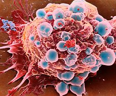 New Breast Cancer Treatment