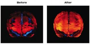 Look At The Brain To Avoid Missed Diagnoses and Treatment Failures