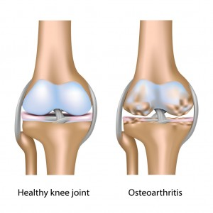 Osteoarthritis Of Knee With Degenerative Joint Changes