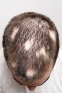 Baldness Can Be Treated With Platelet Rich Plasma