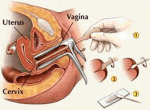 Low Cost Cervical Cancer Screening