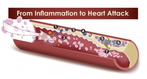 From Inflammation To Heart Attacks, Strokes And Arthritis