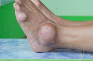 Regrets Following Holiday Foods (Gout Patient)