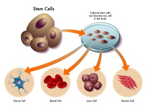 Prolotherapy And Stem Cell Therapy