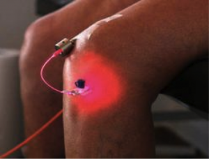 Laser-Therapy-Going-Beyond-Skin-Deep