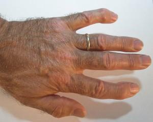 Stop Suffering From Arthritis
