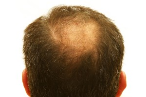 There Is Help For Hair Loss