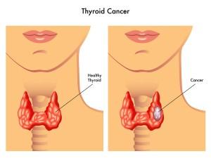 Thyroid Cancer In Children
