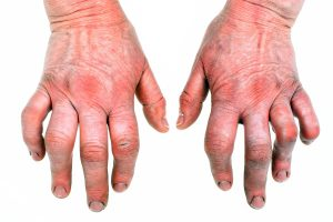 Arthritis Drugs Can Cause Heart Failure
