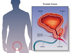 Prostate Cancer Treatment Is Often Inadequate