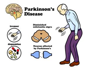 Parkinson's Disease May Be Stopped