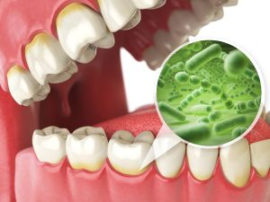 Mouth Flora And Your Health