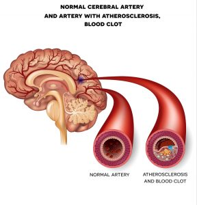 Prevent Plugged Arteries