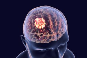 Modified Poliovirus Effective Against Brain Cancer