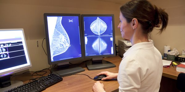 Less Chemotherapy For Breast Cancer Patients
