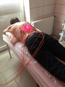 Stem cell therapy of lower thoracic spine