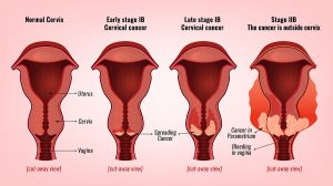 HPV Testing For Cervical Cancer