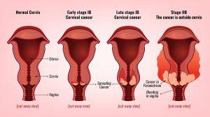HPV Testing For Cervical Cancer