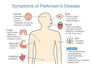 Connection Between Parkinson's Disease And The Removal Of The Appendix